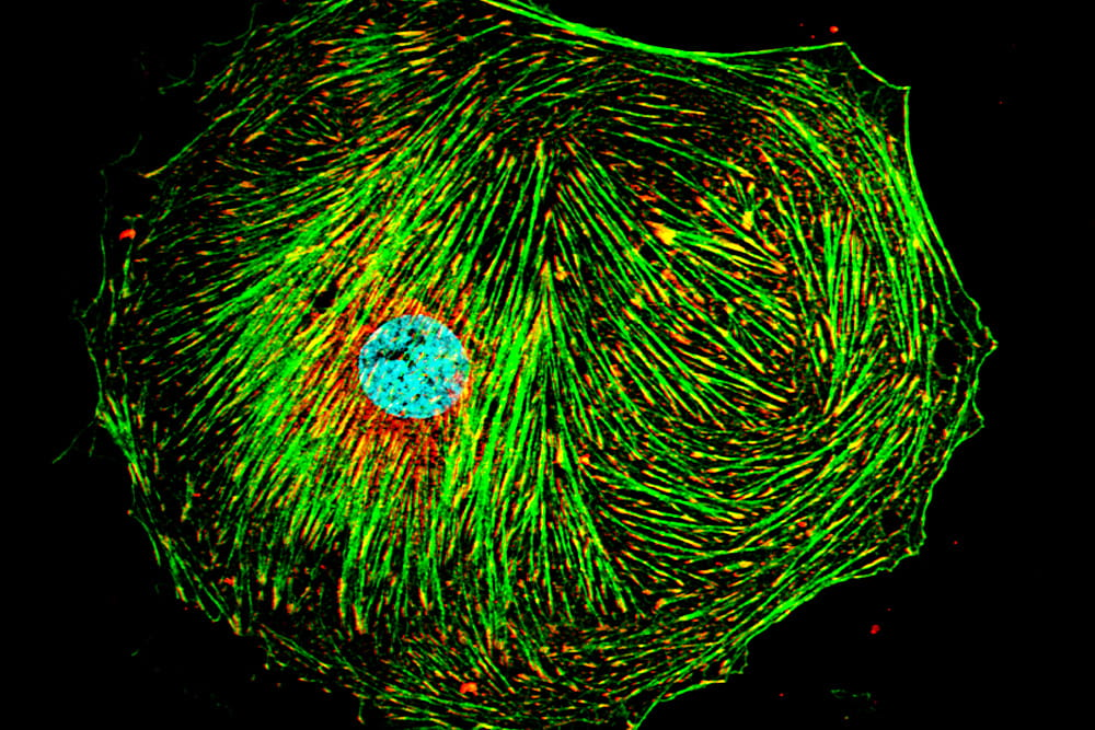 Stellate Cell Focal Adhesions and Cytoskeleton. Image courtesy of Dr. Don Rockey, rights reserved.