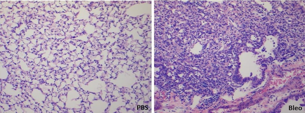 Slides showing bleomycin-induced pulmonary fibrosis in a mouse model of fibrosis.