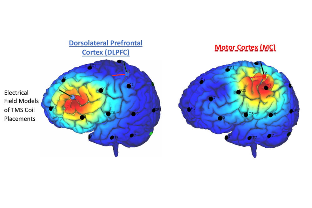 Illustration of two brains showing the motor cortex, located near the middle of the skull, and the DLPFC, closer to the front.